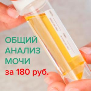 Общий анализ мочи за 180 рублей!